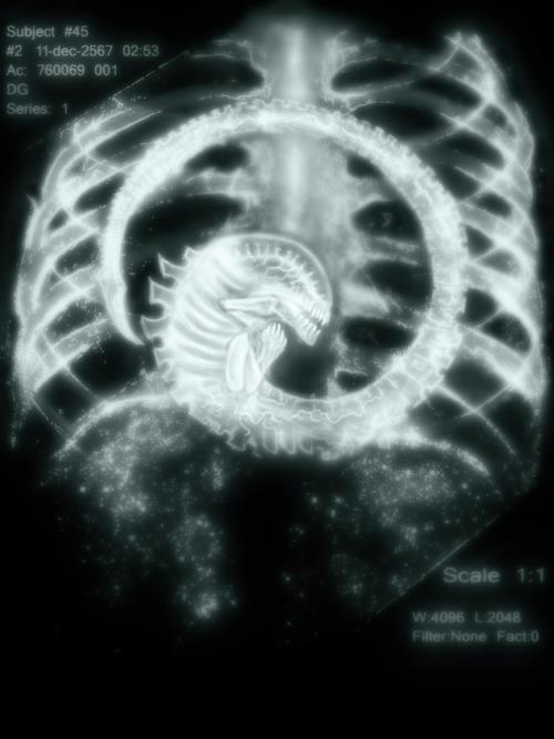 Caption This! Alien X-Ray
